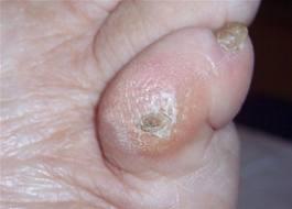 cor aux pieds - orteils - pédicure médicale
