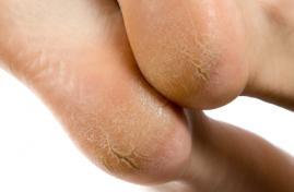 crevasses aux pieds